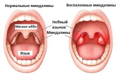 Как лечить гнойнички в горле у ребенка до года