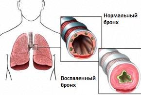 Гиперактивность бронхов лечение гомеопатией thumbnail